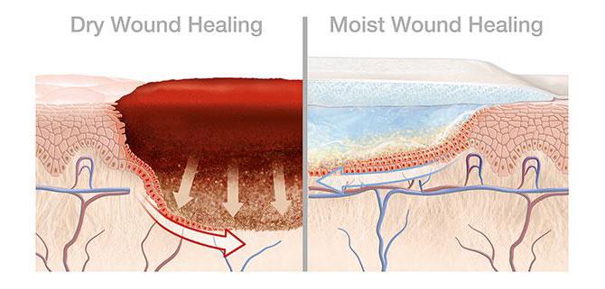 Moist healing conditions